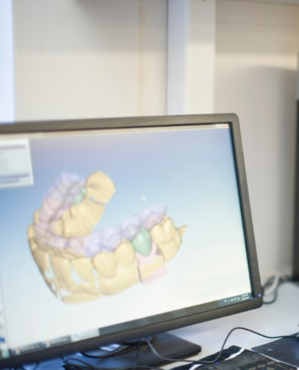 Digital Dental Impressions, Calgary Dentist
